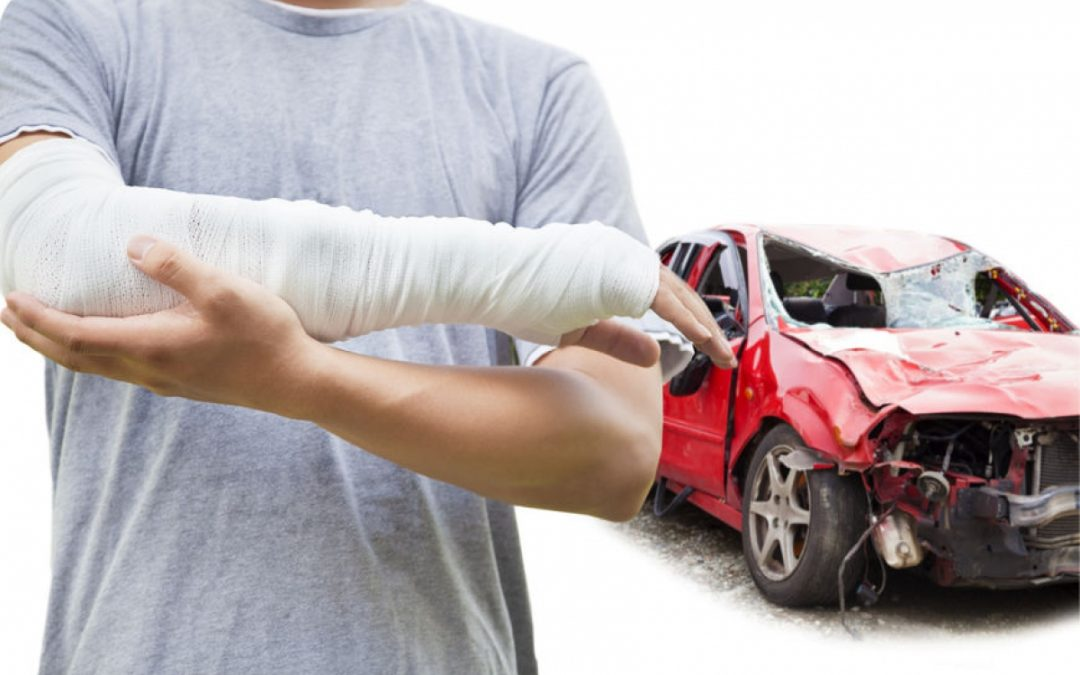 What are Compensatory Damages?